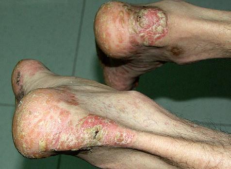 Unguenti popolari a eczemi
